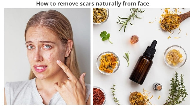 How to remove scars naturally from face permanently