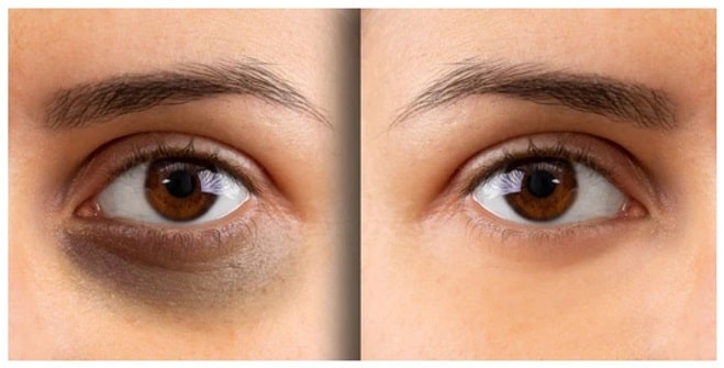 7 tips to get rid of dark circles on eye with natural remedies